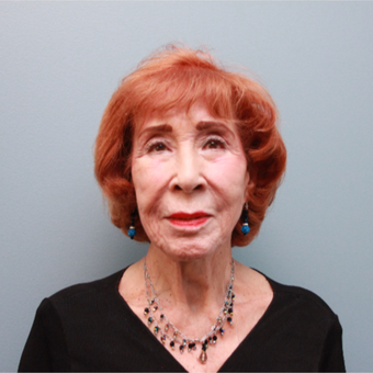 83 year old woman treated with a LiteLift® facelift before 3380077