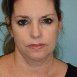 35-44 year old woman treated with Facelift before 3722270