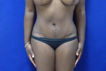 32 y.o. – female – Wise pattern mastopexy with abdominoplasty (mommy makeover) after 3401308