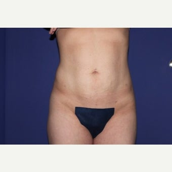 35-44 year old woman treated with Liposculpture