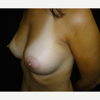 25-34 year old woman treated with Breast Augmentation after 3823110