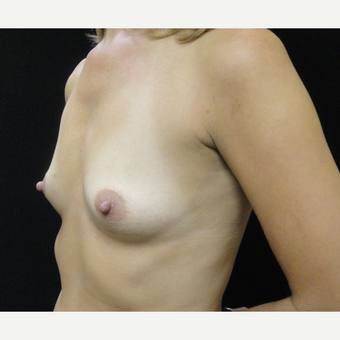 25-34 year old woman treated with Breast Augmentation before 3823110