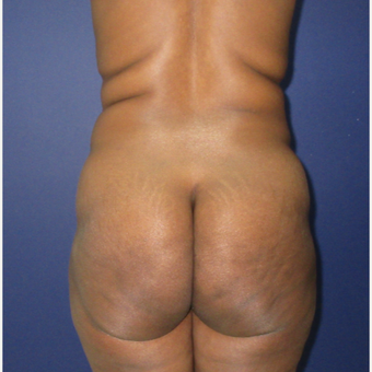 35-44 year old woman treated with Brazilian Butt Lift before 3726036