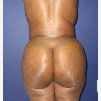 35-44 year old woman treated with Brazilian Butt Lift after 3726036