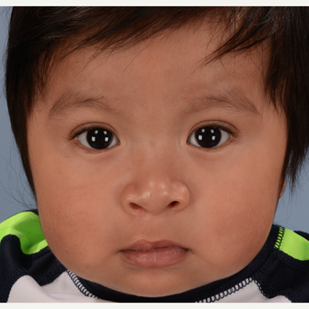 17 or under year old man treated with Cleft Lip And Palate Repair after 3639074