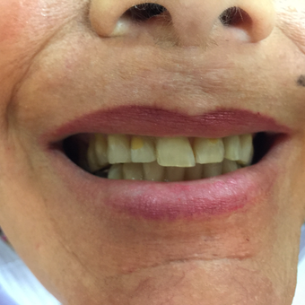 45-54 year old woman treated with Porcelain Veneers in only 2 appointments before 3140780