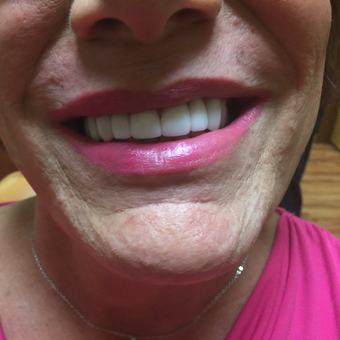 45-54 year old woman treated with Porcelain Veneers in only 2 appointments after 3140780