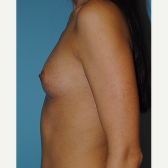 30 Year old with 300 cc silicone gel moderate profile plus implants before 3163541