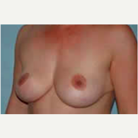 Breast Augmentation before 3058290