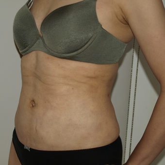 35-44 year old woman treated with Vaser Liposuction after 3819070