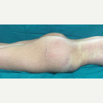 25-34 year old woman treated with Butt Lift after 3212284