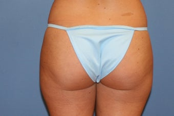 Smartlipo before 91278