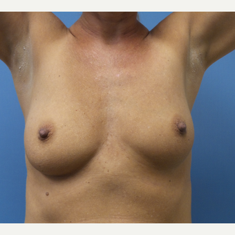 35-44 year old woman treated with Breast Augmentation before 3685243