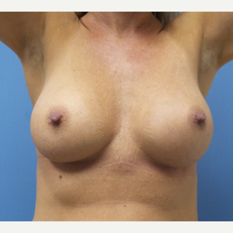 35-44 year old woman treated with Breast Augmentation after 3685243