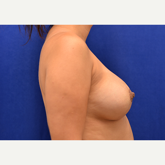 25-34 year old woman treated with Breast Implant Revision after 3061178