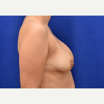25-34 year old woman treated with Breast Implant Revision before 3061178