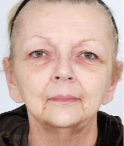 55-64 year old woman treated with Eyelid Surgery before 3264415