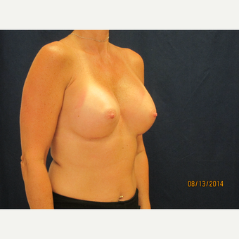 45-54 year old woman treated with Breast Implants after 3301117