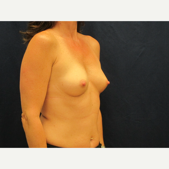 45-54 year old woman treated with Breast Implants before 3301117