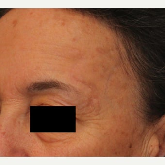 Complex Mohs Repair of the Forehead after 2553544