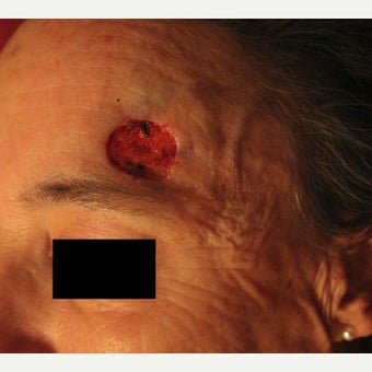 Complex Mohs Repair of the Forehead before 2553544