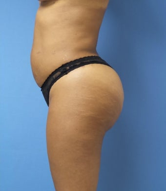 45-54 year old woman treated with Brazilian Butt Lift after 1988226