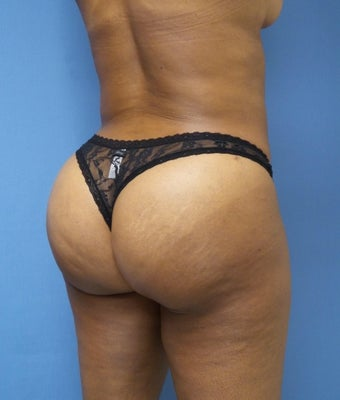 45-54 year old woman treated with Brazilian Butt Lift 1988226