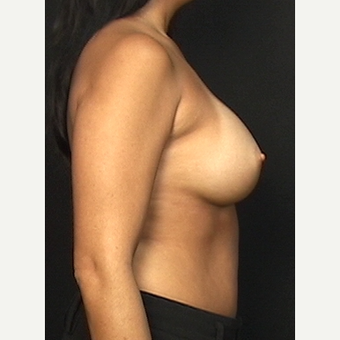 "Mother who wants fuller breasts using the ""No Scar on the Breast"" technique after 3286432"