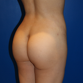 35-44 year old woman treated with Brazilian Butt Lift after 3125720