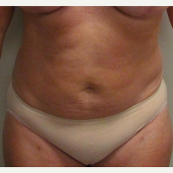 Abdominal Liposuction for this 46 Year Old Woman after 3025358