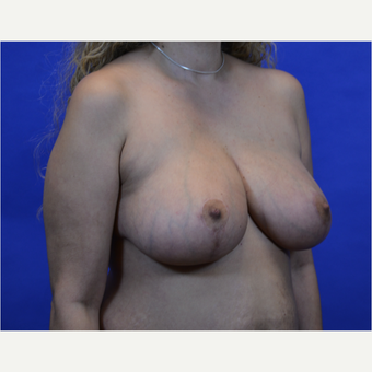 35-44 year old woman treated with Breast Reduction after 3579985