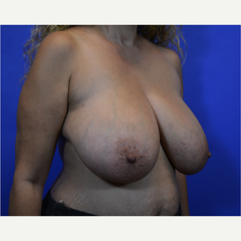 35-44 year old woman treated with Breast Reduction before 3579985