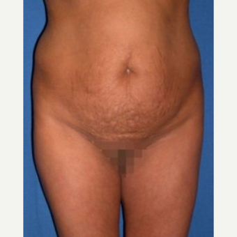 35-44 year old woman treated with Tummy Tuck before 3009735