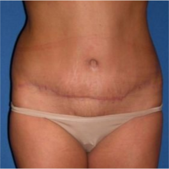 35-44 year old woman treated with Tummy Tuck after 3009735