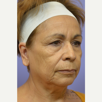 55-64 year old woman treated with Facelift before 3391457