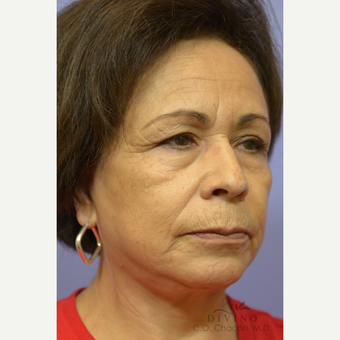 55-64 year old woman treated with Facelift after 3391457
