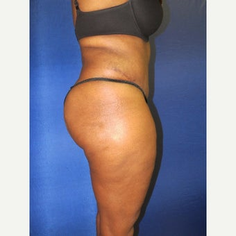 35-44 year old woman treated with Tummy Tuck after 2296667