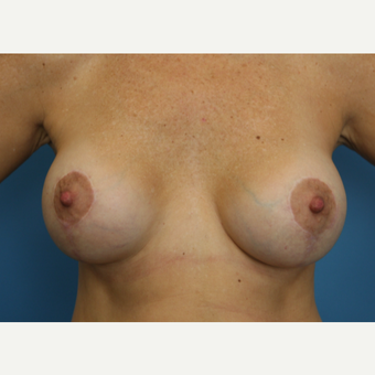 45 year old woman treated with Breast Lift after 3582135