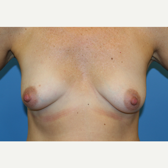 45 year old woman treated with Breast Lift before 3582135