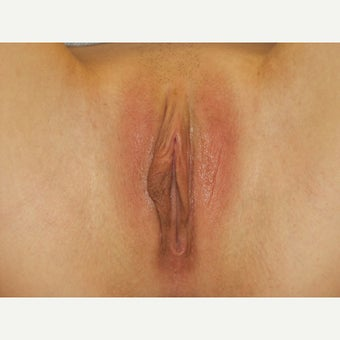 25-34 year old woman treated with Labiaplasty before 1833476