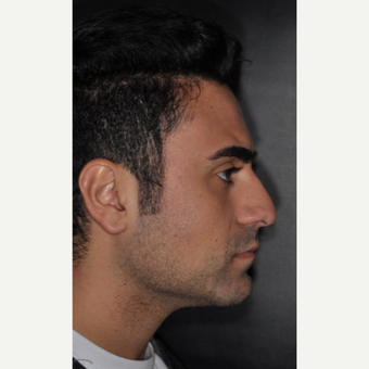 18-24 year old man treated with Rhinoplasty 6 weeks post-op before 3500129