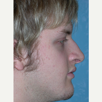 18-24 year old man treated with Rhinoplasty before 3732511