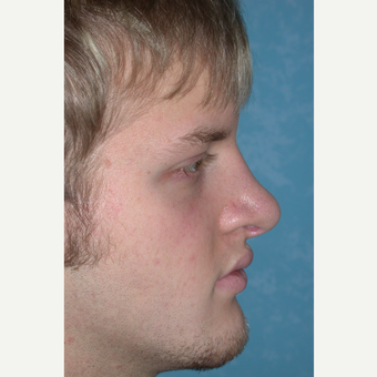 18-24 year old man treated with Rhinoplasty after 3732511