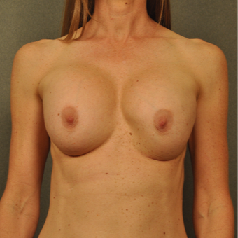 35-44 year old woman treated with Breast Implant Revision before 3042202