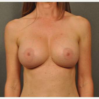 35-44 year old woman treated with Breast Implant Revision after 3042202
