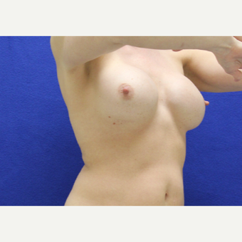 35-44 year old woman treated with Breast Implant Revision before 3482393