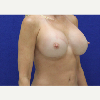 35-44 year old woman treated with Breast Implant Revision after 3482393