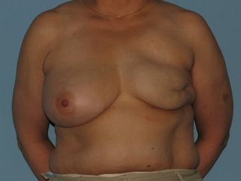 Received a left breast implant and a Breast Reconstruction after tissue expansion. before 963251