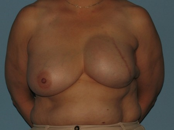 Received a left breast implant and a Breast Reconstruction after tissue expansion. after 963251