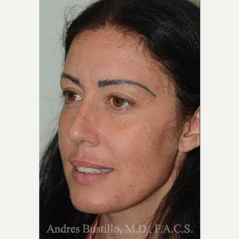 39 year old woman treated with Rhinoplasty after 3460898